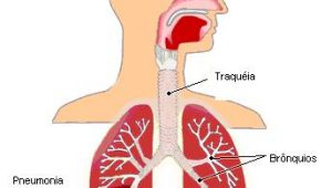 Doenças virais respiratórias