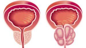 Sintomas de prostatismo | Dr. Salim
