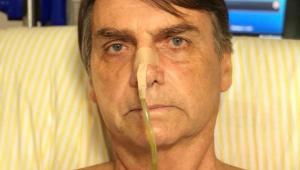 Bolsonaro tem quadro clínico estável e sem novidades
