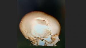 Luciano Huck mostra raio-x de filho, revela falta de capacete e alerta: 'Sempre use'