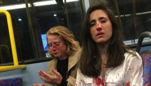 Melania Geymonat (à dir.) e sua namorada, Chris, foram atacadas em Londres em 30 de maio