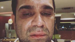 Evandro Santo é agredido após show em SP: 'Homofobia e covardia'